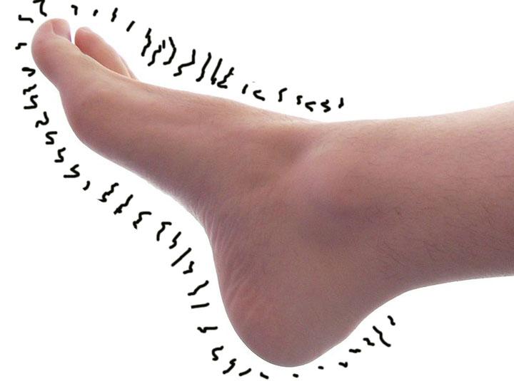 neuropathic_foot